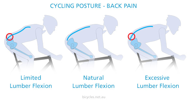 Cycling Posture Back Pain