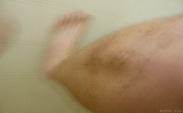 blurry legs